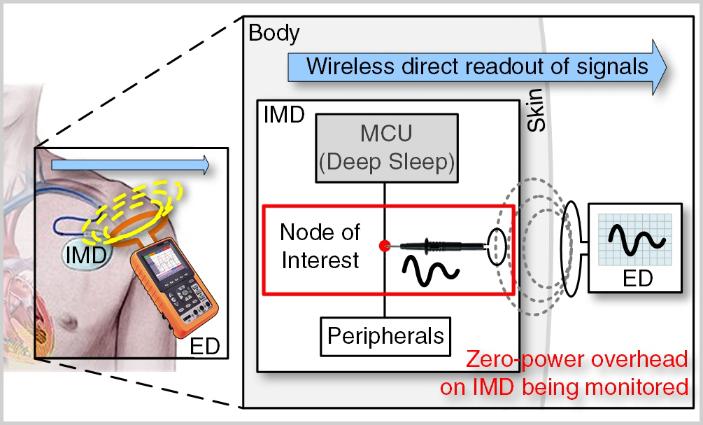 Zero-power Contactless Probing for IMDs